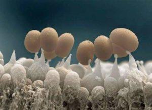 Грибок ногтя под микроскопом