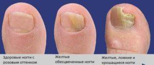 Процесс развития грибка ногтей