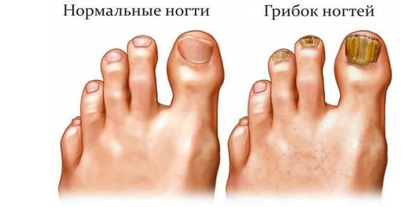 Грибок ногтей можно увидеть самостоятельно