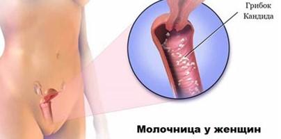 При молочнице колонии кандид образуются на стенках влагалища