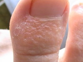 Грибковые заболевания кожи: симптомы, названия видов микоза, диагностика заболевания, принцип лечения, наружные препараты, системные препараты, народные средства