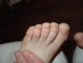 Грибок ногтей бывает даже у детей