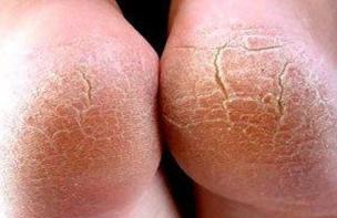 Трещины на стопах указывают на грибок