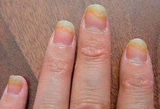 Флуконазол помогает в лечении грибка кожи