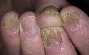 Грибок ногтей на руках лечение в домашних условиях народными thumbnail