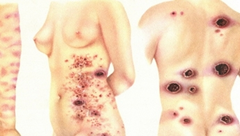 Обширные поражения кожи