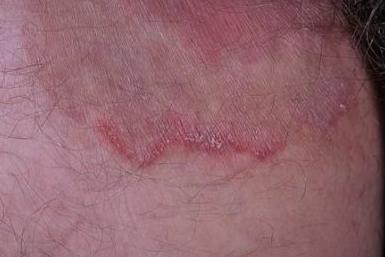При паховом грибке в складках появляются пятна