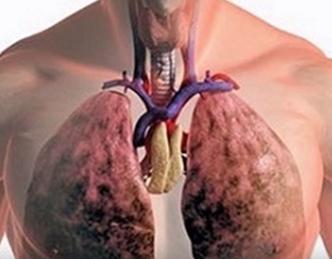 Микоз легких может закончиться смертью больного