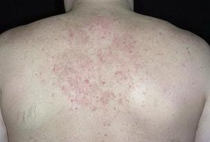 Себорейный дерматит чаще поражает центр спины