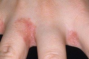 Аллергия между пальцами