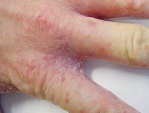 Покраснение и зуд между пальцами ног 25