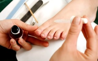 Как быстро избавиться от грибка ногтей на ногах в домашних условиях