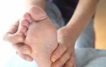 Как выглядит грибок на ногтях ног и между пальцами: как определить грибок на начальной стадии
