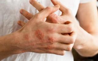 Симптомы и лечение грибка на руках