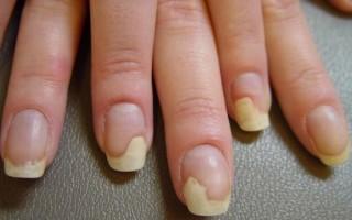 Причины и лечение онихолизиса на руках и ногах