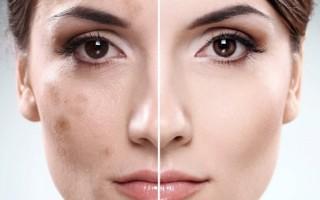 Лишай на лице: почему возникает и как избавиться