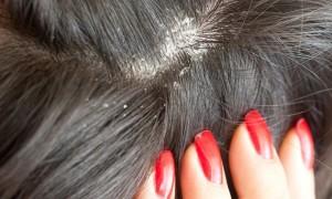 Причины и лечение себореи кожи головы