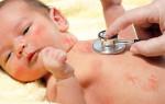 Лишай у детей: симптомы, как и чем лечить