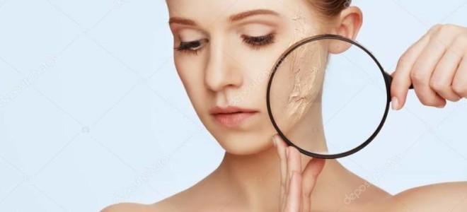 Почему возникает себорея на лице и как ее лечить