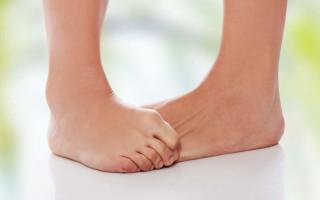 Грибок на коже (дерматомикоз): симптомы и чем лечить