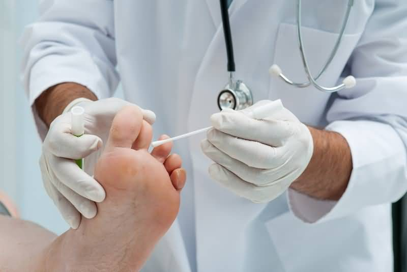 Грибок ногтей врач дерматолог