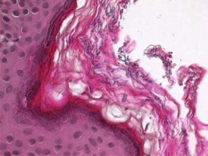 Отрубевидный лишай под микроскопом