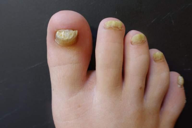 Грибок под ногтем на ноге лечение