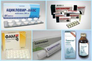 Препараты для лечения герпевируса