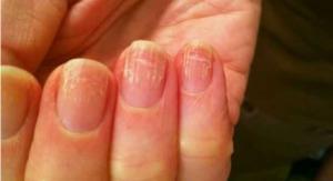 Измененные ногти при начальных стадиях онихомикоза