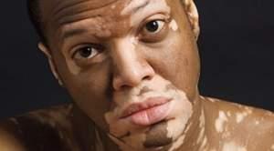 Главная проблема при заболевании – косметическая