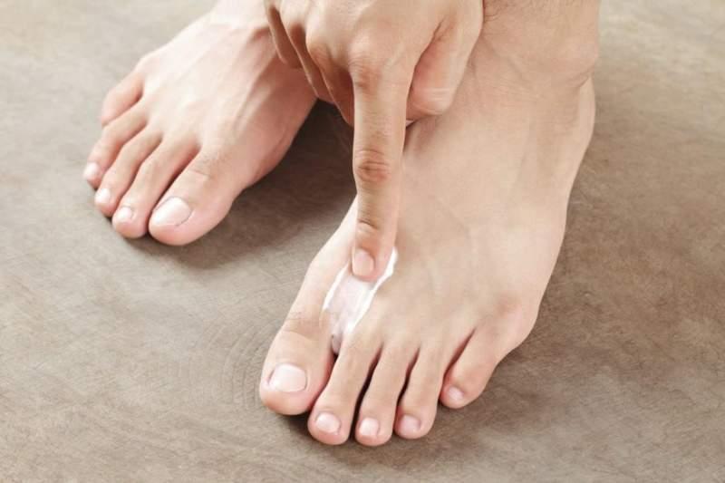 Мазь от грибка на ногах между пальцами: какую выбрать?