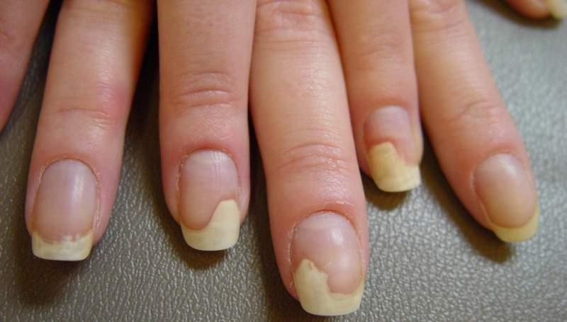 Причины и лечение онихолизиса отслоения ногтя от мягких тканей пальца