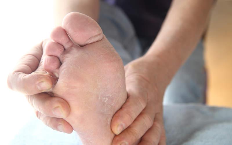 Грибок меж пальцев ног