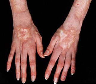 Пятна склеродермии отличаются от всей кожи по цвету и текстуре