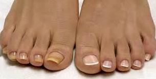 При онихомикозе ногти желтеют