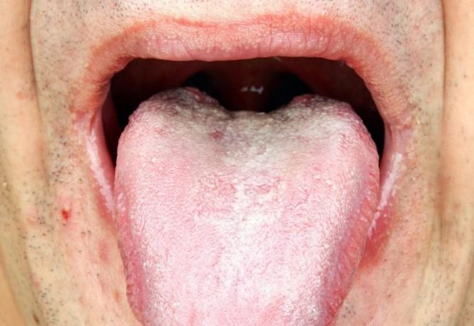 Кандидозы у мужчин лечение препараты курс лечения