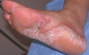 Острый дерматомикоз