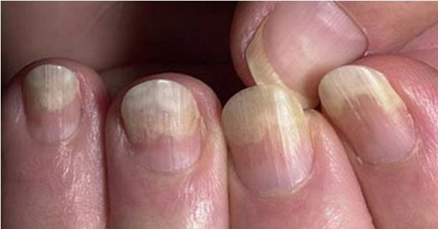При грибке ногтей потребуется длительный курс лечения