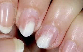 Онихолизис на ухоженных ногтях