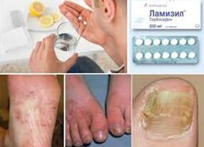 Последствия бесконтрольного лечения