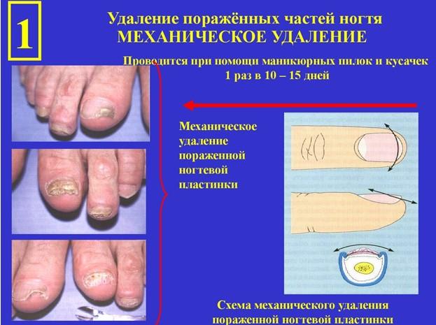 Подготовка ногтей к обработке