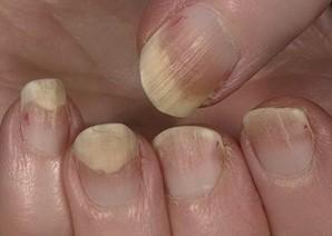 Поврежденные онихолизисом ногти утолщаются, становятся хрупкими