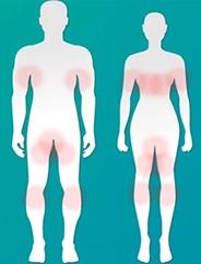 Распространенные зоны грибковых поражений тела