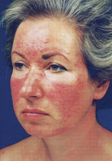 Кожа на лице при аллергии краснеет