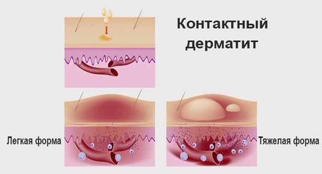 Формы дерматита