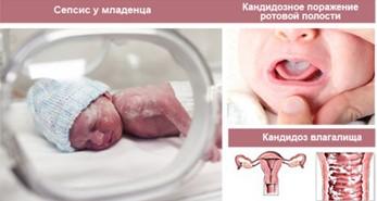 Сепсис у новорожденного