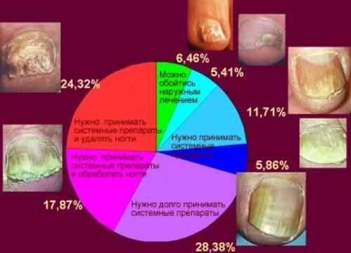 Методы лечения онихомикоза