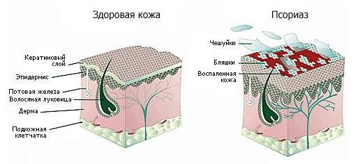 Кожа при псориазе
