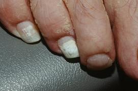 Поражение ногтей при онихомикозе