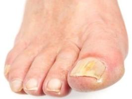 После ванночки пораженный ноготь легче удаляется